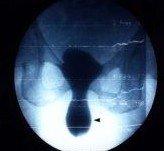 Ακτινολογική εικόνα της κυστεοκήλης(πτώσης της ουροδόχου κύστης)