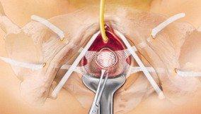 Διακολπική τοποθέτηση πλέγματος για διόρθωση κυστεοκήλης